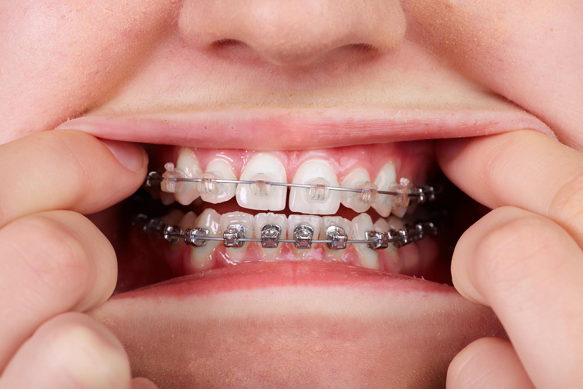 Dentofacial Orthopedics