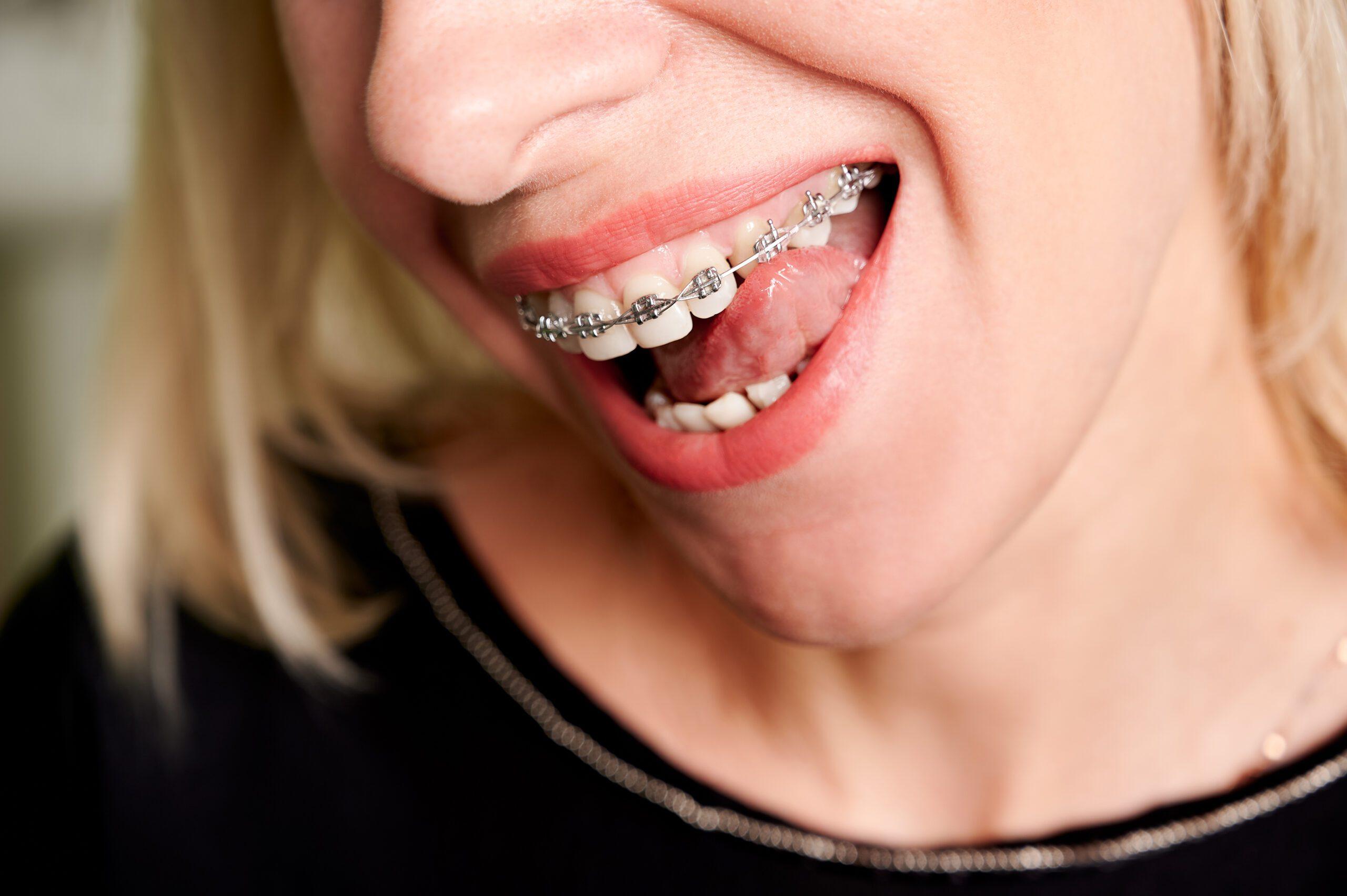 Orthodontics Review